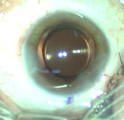 Cataracte sous capsulaire postérieure et astigmatisme cornéen - Implantation multifocale torique Position finale