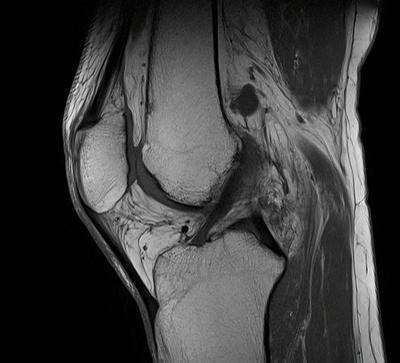 Déchirure myoaponévrotique du semi membraneux  IRM Membre inférieur T1