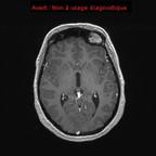HEMANGIOBLASTOME  IRM Crâne Axial Gadolinium