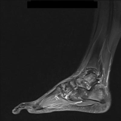 Maladie de Ledderhose/Fibromatose superficielle plantaire IRM pied gauche STIR sagittal