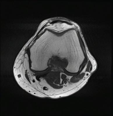 Kyste mucoïde du genou  IRM du genou Axial T1 TSE