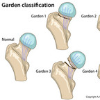 Femoral neck fractures Garden-Classification-Femoral-neck-fractures