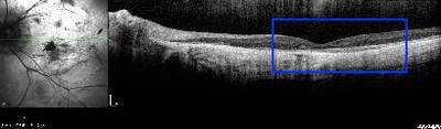 Choroidérémie OCT ODG patient n°2