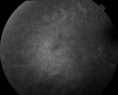 Occlusion de la branche temporale inférieure de l'artère centrale de la rétine OD Angio Fluo OD M1