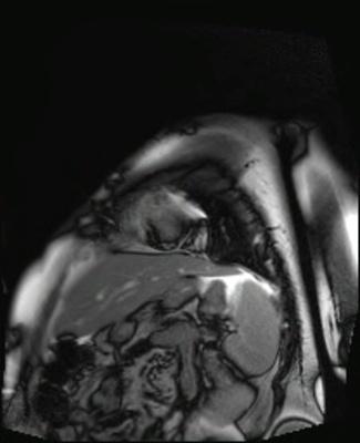 Péricardite aiguë constrictive CINE TrueFISP_PA GADO