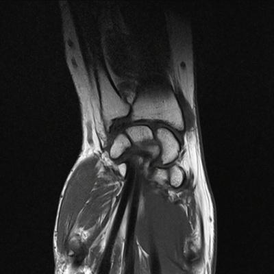 Ténosynovite de De Quervain  IRM poignet Coronal T1 TSE