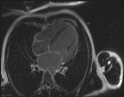 Non compaction du ventricule gauche fl3d_51seg_ir SA 4CAV 280