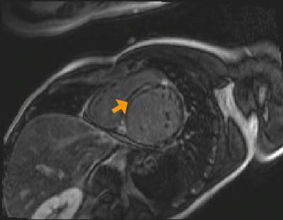Non compaction du ventricule gauche fl3d_51seg_ir SA PA 260