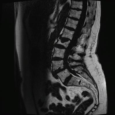 Aggressive vertebral angioma of T6 T2 TSE DIXON SAG_W