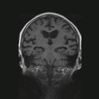 Atrophie Hippocampique de stade 4 selon l'échelle de Scheltens SAG 3D T1 SPACE TSE_MPR_Cor