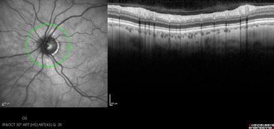 Occlusion de la branche temporale inférieure de l'artère centrale de la rétine OD OCT RNFL