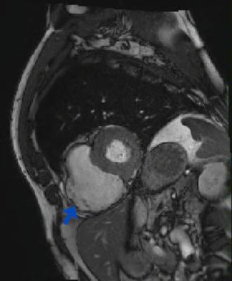 Dysplasie arythmogène du ventriule droit (DAVD) : critère majeur en IRM TRUFI PA BALAYAGE_CINE