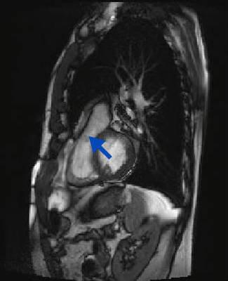 Membrane de l'infundibulum pulmonaire, sans étiologie précise... CINE TrueFISP_GCHE