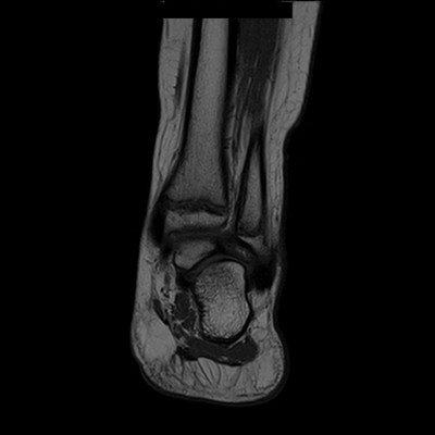 Syndrome de l'os naviculaire accessoire IRM T1 Coronale