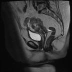 Cancer de l'endomètre avec extension loco-régionale et ganglionnaire Sagittal T2