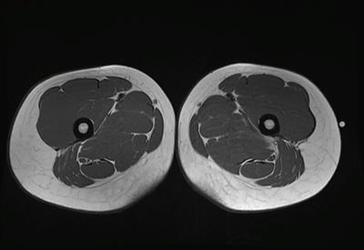 Déchirure musculaire  IRM hanche axiale T1 TSE
