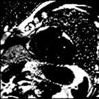 Dysplasie arythmogène du ventriule droit (DAVD) : critère majeur en IRM PSIR TRUFI 10CPES 1APNEE_DE_OVERVIEW_PSIR