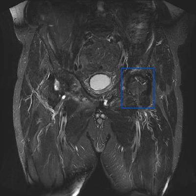 Ostéonécrose aseptique bilatérale des têtes fémorales  IRM hanches Coronal T2 STIR