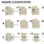Fractures du rachis thoraco-lombaire Magerl-Classification-Thoracolumbar-spine-fractures