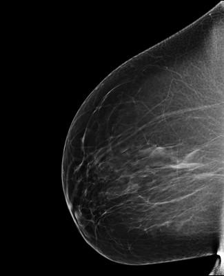 Discordance en imagerie avec macrobiopsie sans élément tumoral: décision de surveillance RML