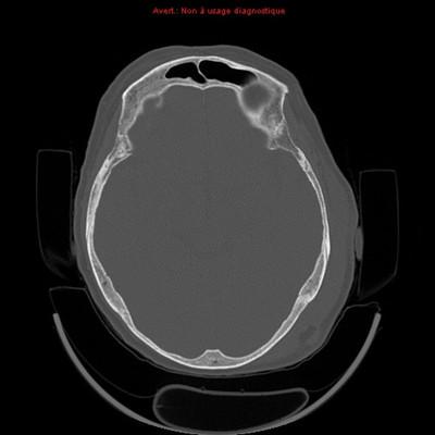 Hématome sous-dural par lésion de contre-coup  TDM Crâne Axial Fenêtre Os