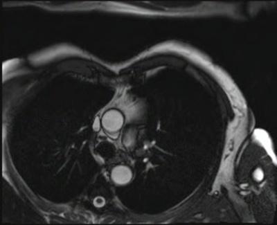 Membrane de l'infundibulum pulmonaire, sans étiologie précise... CINE TrueFISP_4 CAV