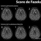 Classification de Fazekas pour la leucoaraïose (ARWMC) score-de-fazekas-leucoaraiose-IRM