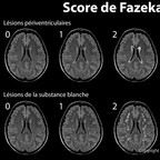 Classification de Fazekas pour la leucoaraïose (ARWMC) score-de-fazekas-leucoaraiose-IRM