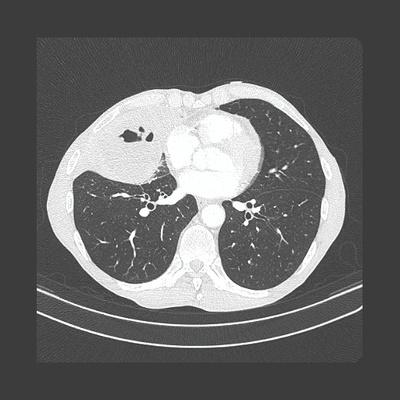 Abcès pulmonaire compliquant un carcinome épidermoïde  TDM Thorax Axial Fenêtre pulmonaire