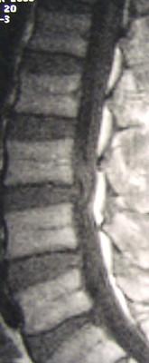 Forme rare d'une hernie discale lombaire image 1