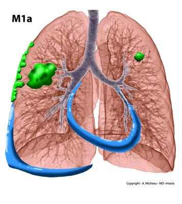 Cancer du poumon M1a