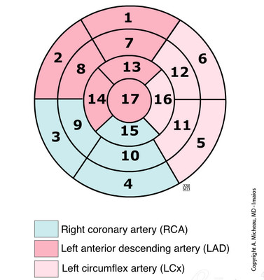 Anatomy of the heart - 17 segments model bull's-eye-display-heart-segmentation-