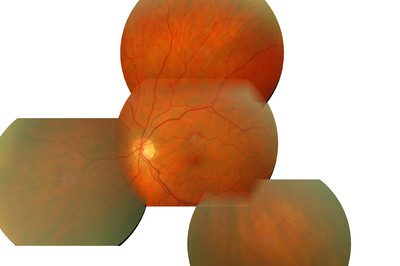 Occlusion de la branche temporale inférieure de l'artère centrale de la rétine OD Mosaique ODG