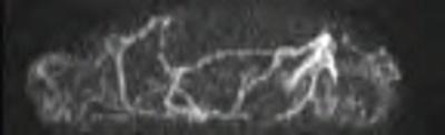 Hypothenar hammer syndrome TWIST COR RES TEMP=2.6s_SUB_MIP_TRA