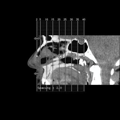 ATCD DCA et DCR Gauche - Bilan de larmoiement à droite ORBITE IV CORO