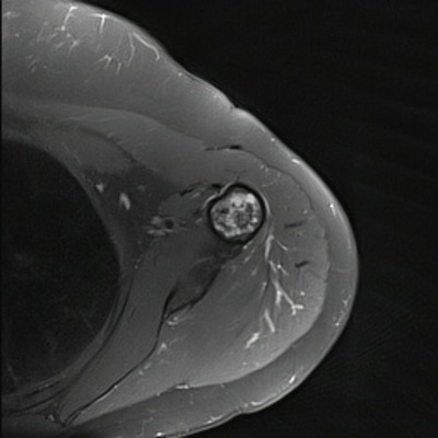 Enchondroma of the proximal humerus Axial DP Fat Sat MRI
