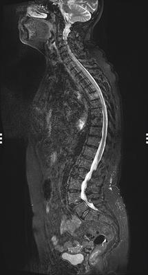 Aggressive vertebral angioma of T6 STIR SAG_COMP_SP_-120