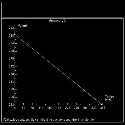 Non compaction du ventricule gauche fonction vg