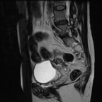 Cancer du col utérin mesurant 3,5 cm de grand axe de stade IV (envahissement vésical et adénomégalies lombo-aortique et iliaque externe droite). Lésion d'endométriose sous-péritonéale. Adénomyose diffuse.  Sagittal T2