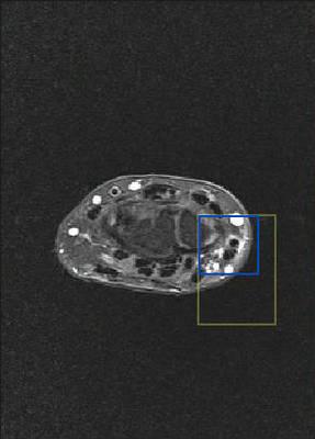 Ténosynovite de De Quervain  IRM poignet Axial DP Fat Sat