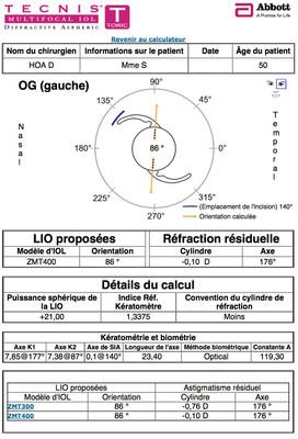 Cataracte sous capsulaire postérieure et astigmatisme cornéen - Implantation multifocale torique Calculateur IOL OG