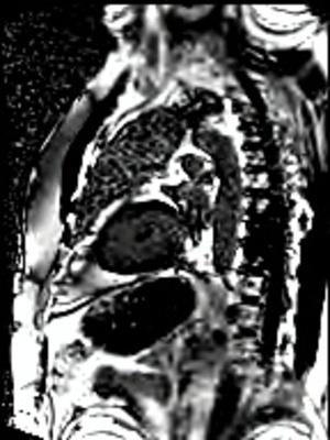 Péricardite chronique constrictive PSIR TRUFI 10CPES 1APNEE_DE_OVERVIEW_PSIR