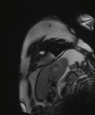 Péricardite chronique constrictive CINE TRUFI PA GADO