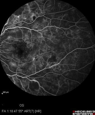 Rétinopathie diabétique préproliférante puis floride bilatérale Angio Fluo OG
