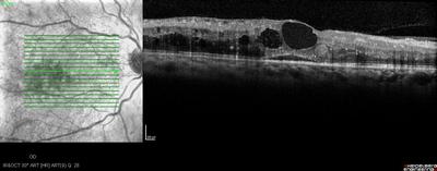 Rétinopathie diabétique préproliférante puis floride bilatérale OCT maculaire OD M6