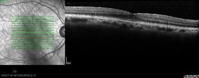 Mélanome iris et corps ciliaire OCT macula OD post op PKE