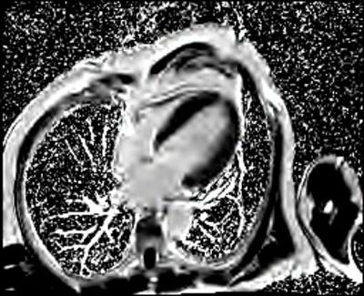 HVG avec asynchronisme marqué du septum interventriculaire PSIR-TFL 4CAV_PSIR