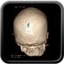 Clinical case 12 - Polytrauma with severe cranioencephalic trauma