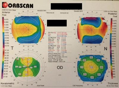 Cataracte sous capsulaire postérieure et astigmatisme cornéen - Implantation multifocale torique Topographie cornéenne OD