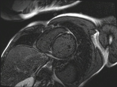 Non compaction du ventricule gauche TrueFISP_PSIR_2D_10Slice_TI300_MAG